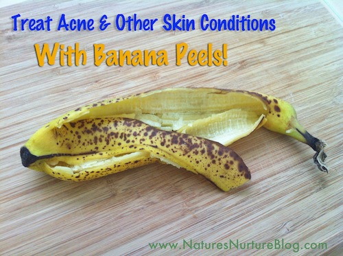 banana peels for acne