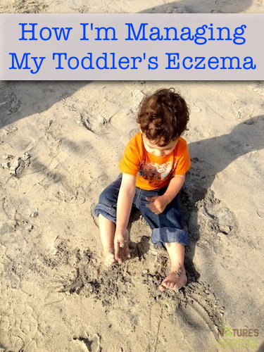 Eczema in Toddlers